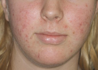 What Causes Acne and These Pimples on My Face?