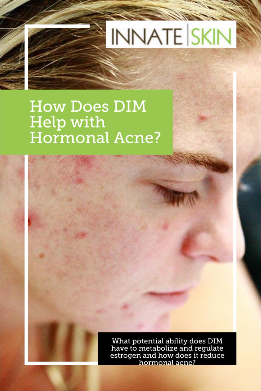 DIM (diindolylmethane) and Hormonal Acne