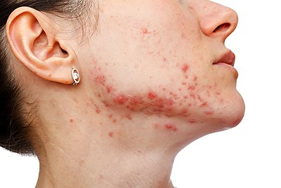 Spironolactone and Acne: What It Is, Why It's Bad, And Why DIM Is Better